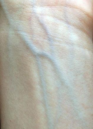 Određivanje podtona kože putem vena